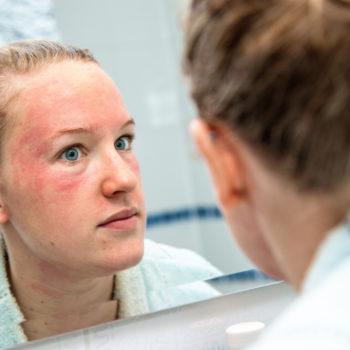 Eczema on face treatment. Women with facial eczema looking in mirror. Eczema Cream, Natural Eczema Cream Australia Hope's Relief