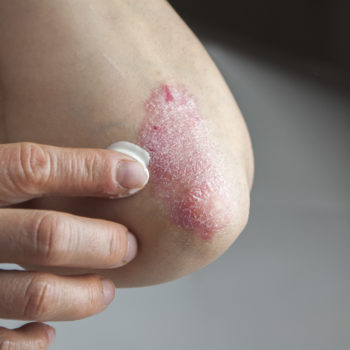 First Signs of Psoriasis